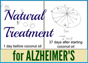 Natural Treatment for Alzheimers